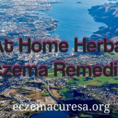 At Home Herbal Eczema Remedies