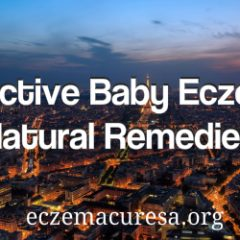 Effective Baby Eczema Natural Remedies