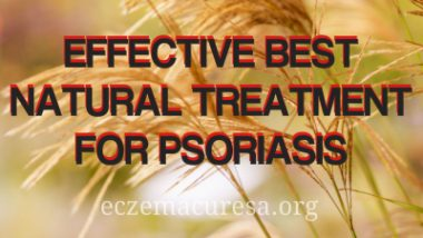 Effective Best Natural Treatment for Psoriasis