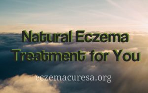 Natural Eczema Treatment for You