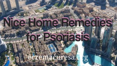 Nice Home Remedies for Psoriasis