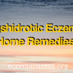 Dyshidrotic Eczema Home Remedies