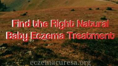 Find the Right Natural Baby Eczema Treatment