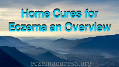 Home Cures for Eczema an Overview