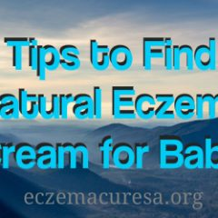 Tips to Find Natural Eczema Cream for Baby